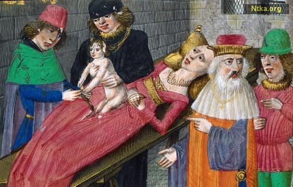 sezaryen doğum